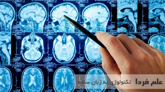 بررسی عملکرد مغز انسان در سنین مختلف