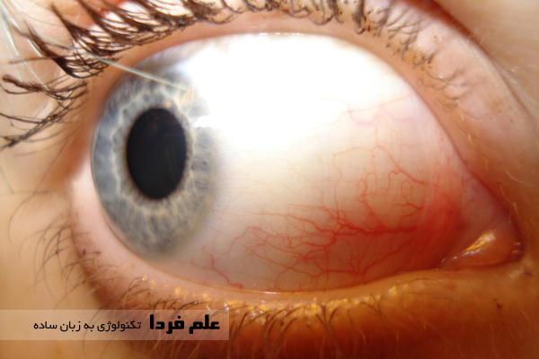 رگ های خونی سفیدی چشم