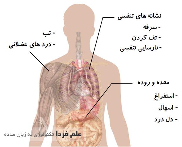 علایم بیماری مرس MERS - عکس از Wikipedia ، ترجمه علم فردا